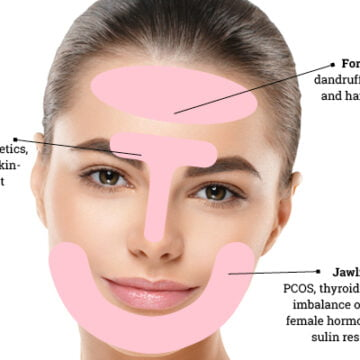 An expert's guide to face mapping for acne and tips to deal with breakouts